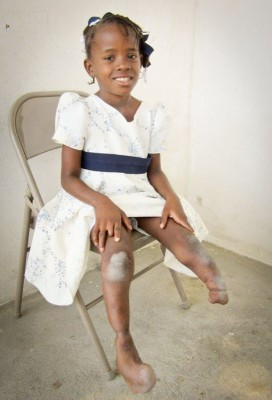 Schnailove, a Prosthetics Outreach Foundation beneficiary in Haiti. (Photo courtesy POF)