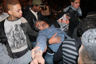 "A protestor shot in the face in February 2012 during the period of military rule before Morsi was elected, just one of hundreds killed by police and security forces during that time. (Photo by <a href=""http://www.flickr.com/photos/bora25"">Bora S. Kamel </a>via Flickr)"