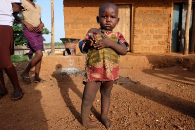 Mohamed, a two-year-old Sierra Leonean born with a congenital condition called clubfoot — seen here before treatment began. (Photo by Debra Bell)